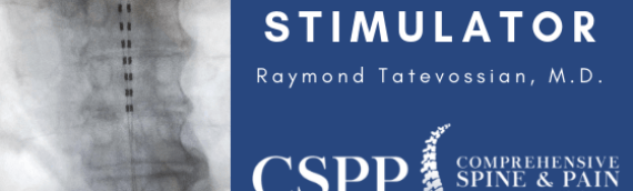 Raymond Tatevossian, MD, implants a Spinal Cord Stimulator