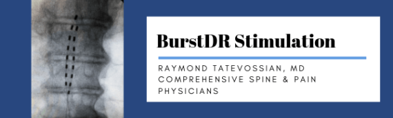 Raymond Tatevossian, MD: BurstDR Stimulation