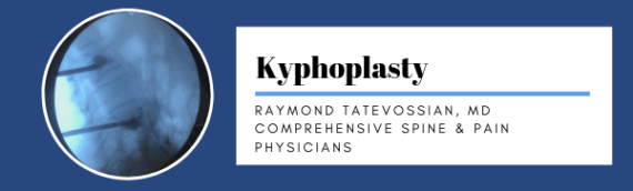 Dr. Raymond Tatevossian: Kyphoplasty Procedure