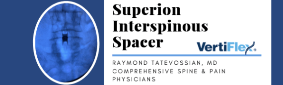 Superion Interspinous Spacer: Dr. Raymond Tatevossian